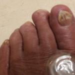 L toenails 2018 after Zeal