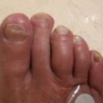 R-toenails-2018-after-Zeal