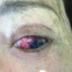 Red Eye 2 Before Zeal
