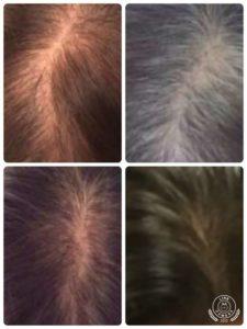 Regrowth of Hair Zeal